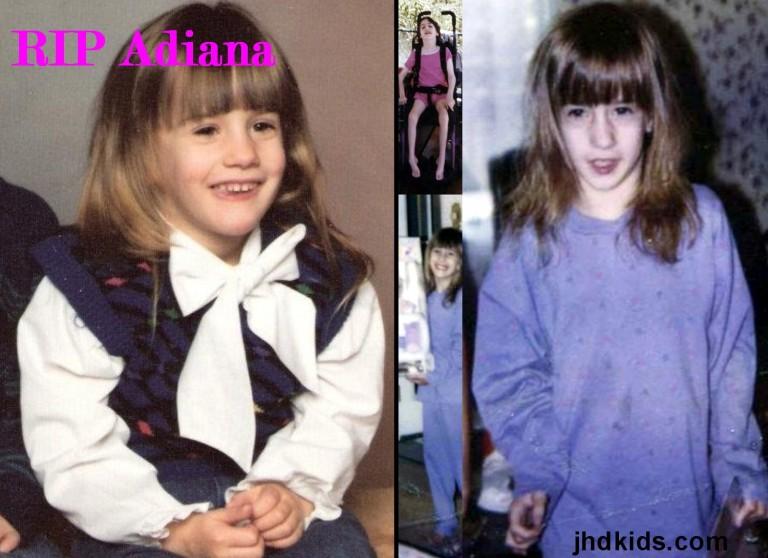Adiana (2)